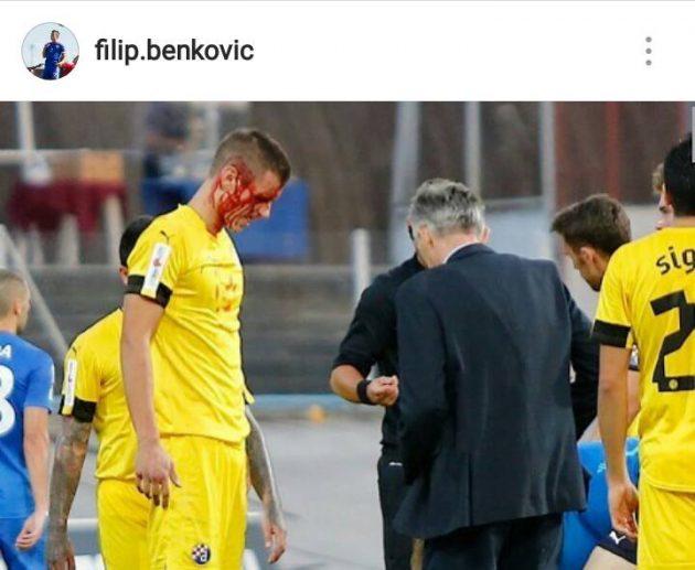 benkovic